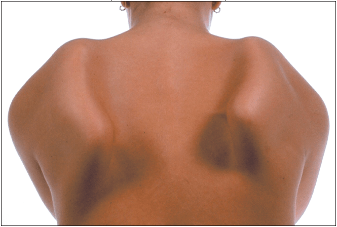 Scapular Winging Treatment in Chicago