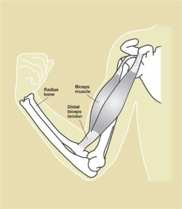 Distal Biceps Tendon Repair in Chicago