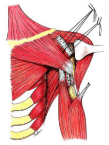 Pectoralis Tendon Tear Repair in Chicago