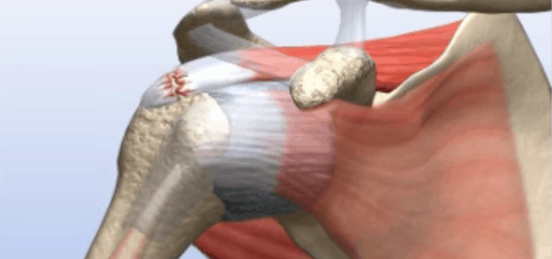 Rotator Cuff Surgery in Chicago