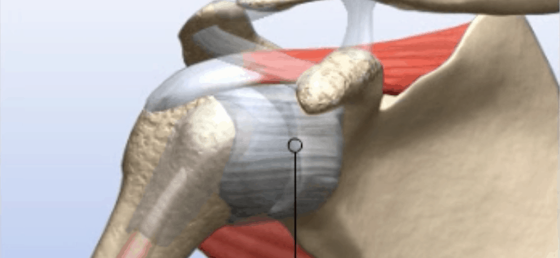 Shoulder Replacement Surgery in Chicago