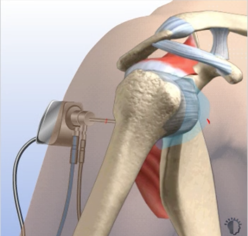 Labral Repair in Chicago