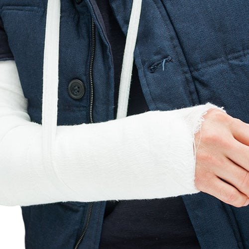Radial Head Fracture Treatment in Chicago