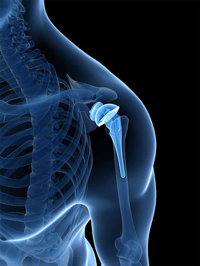 Reverse Shoulder Replacements Surgical Options in Chicago