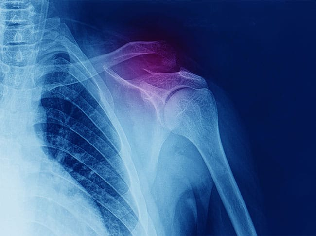 Rotator Cuff Injury in Chicago